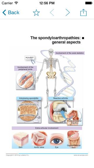 Miniatlas Diseases of the vertebral column iPhone Screenshot 3
