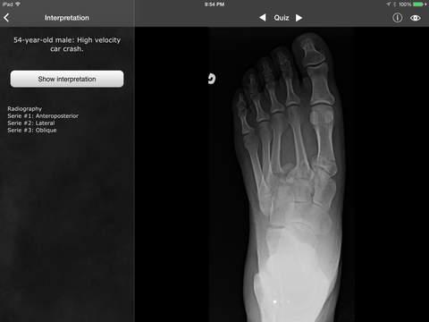 RealWorld Orthopaedics iPad Screenshot 5