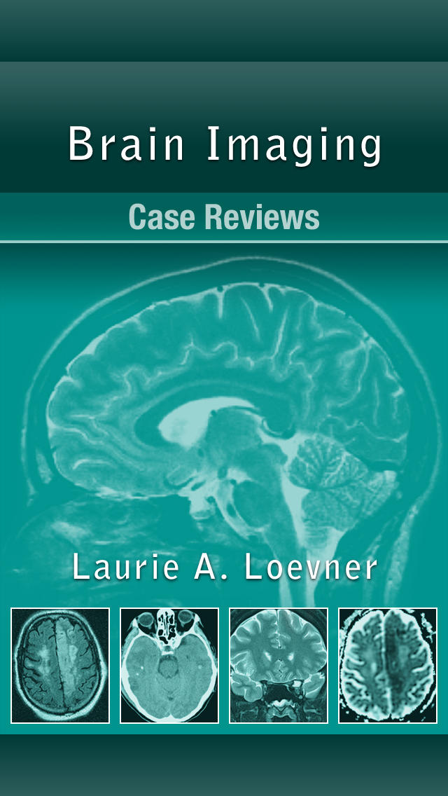 Brain Imaging Case Review screenshot 1