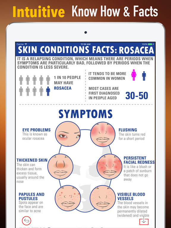 Rosacea Treatment Natural Home Remedies And Diet Apps 148apps